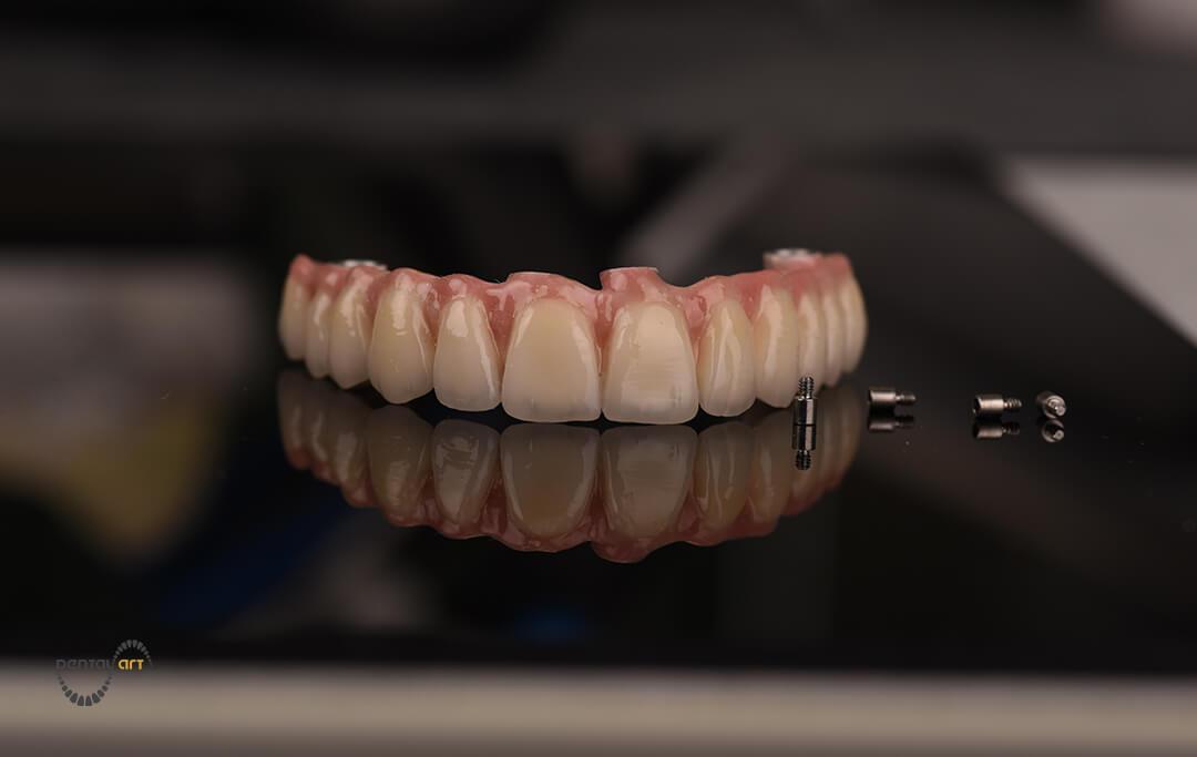 Zubna proteza i četiri zubna implantata na crnoj staklenoj površini