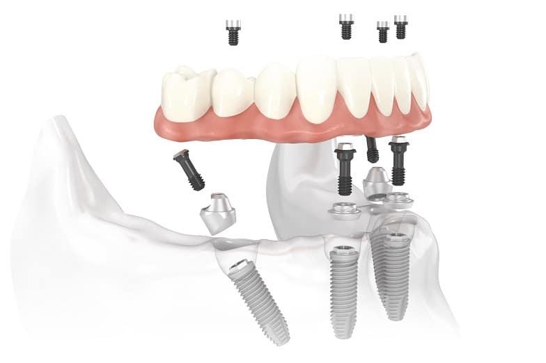 Ilustracija all-on-four metode ugradnje zubnih implantata