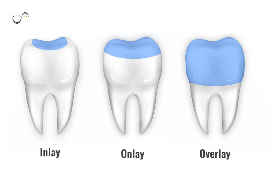Ilutracija - Inlay, Onlay i Overlay zubni ispuni