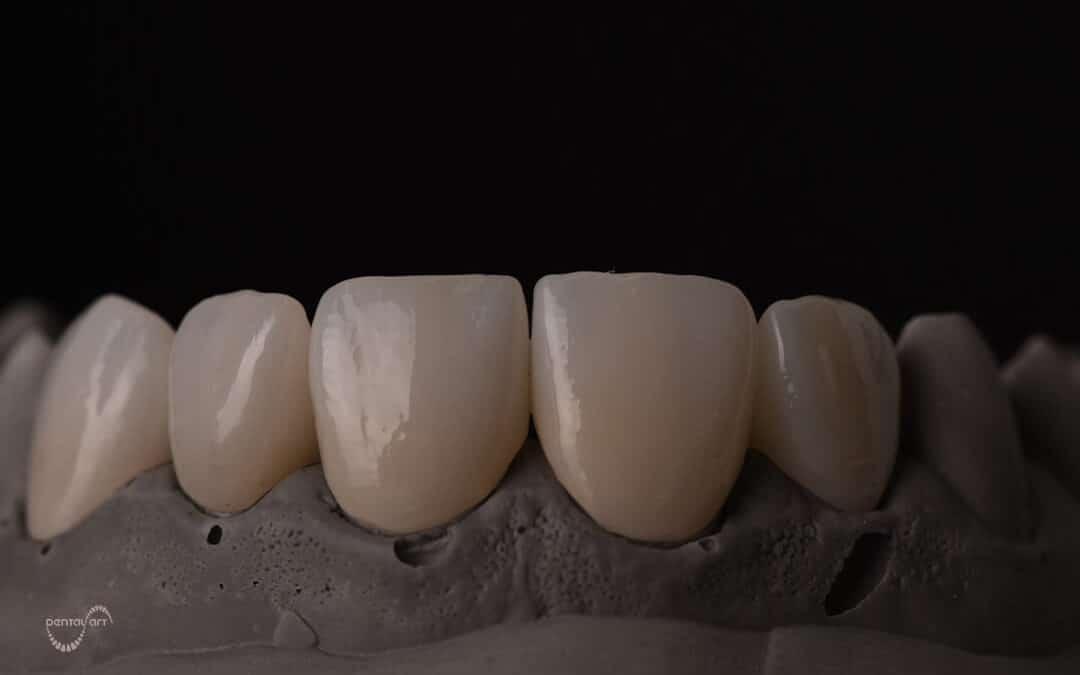 Kako se izrađuju krunice za zube?