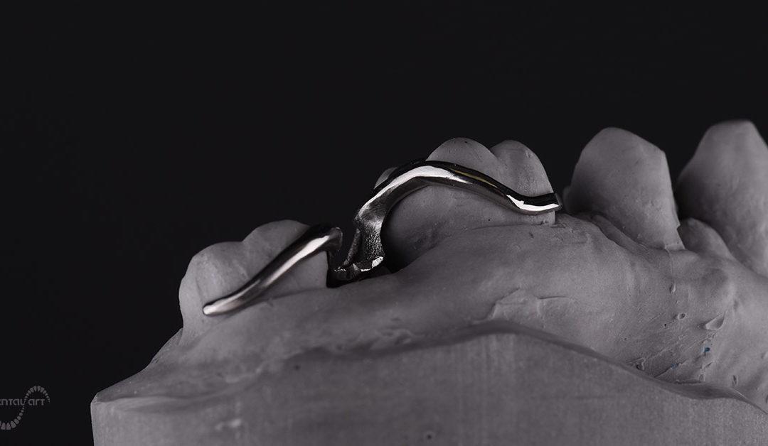 Lijevana (wironit) djelomična proteza