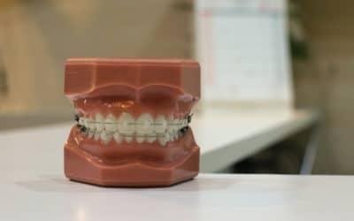 Aparatići za zube – vrste i savjeti za odabir
