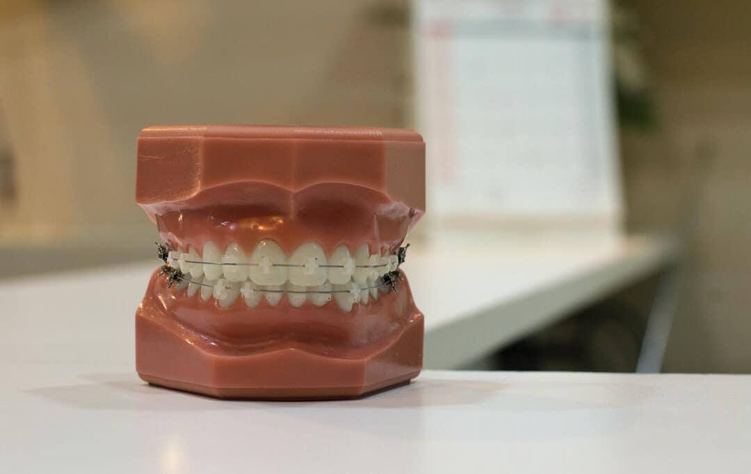 Model zubi s fiksnim aparatićem za zube
