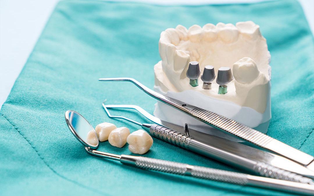 Je li ugradnja implantanata bolna?