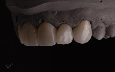 Materijali koji se koriste u dentalnoj medicini