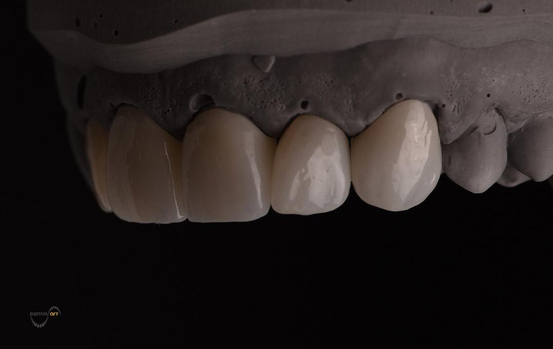 Zubna krunica izrađena od monolitnog cirkona na crnoj pozadini.