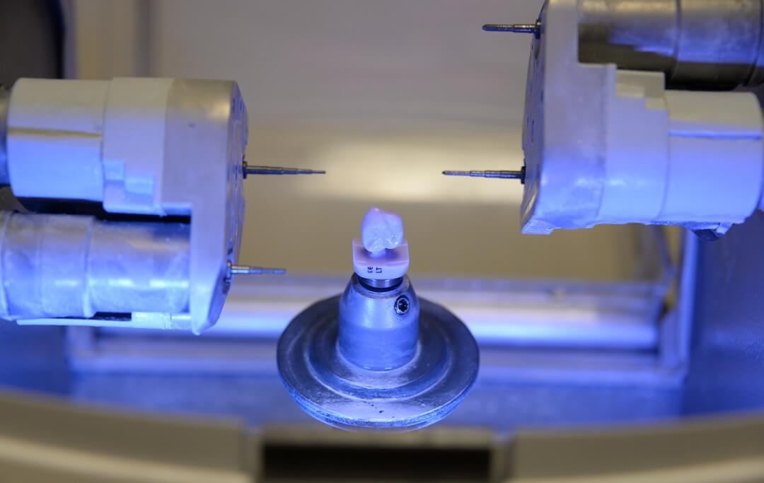 Izrada protetskog nadomjestka CAD/CAM tehnologijom