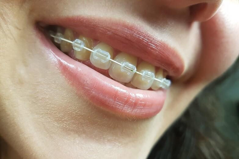Osoba s fiksnim aparatićom za zube se smiješi