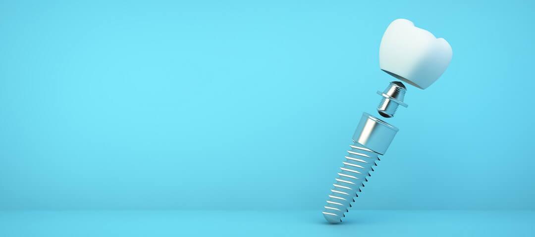 Prikaz dijelova implantata: implantat, abutment/nadogradnja, kruna