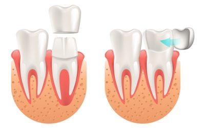 Kada se koriste zubne krunice, a kada ljuskice?