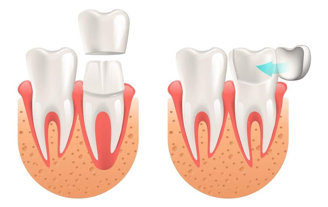 Ilustracija krunice za zube i ljuskice za zube