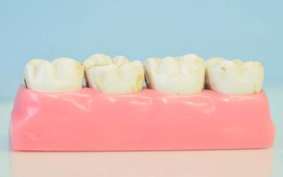 Zubne krunice – sve što trebate znati