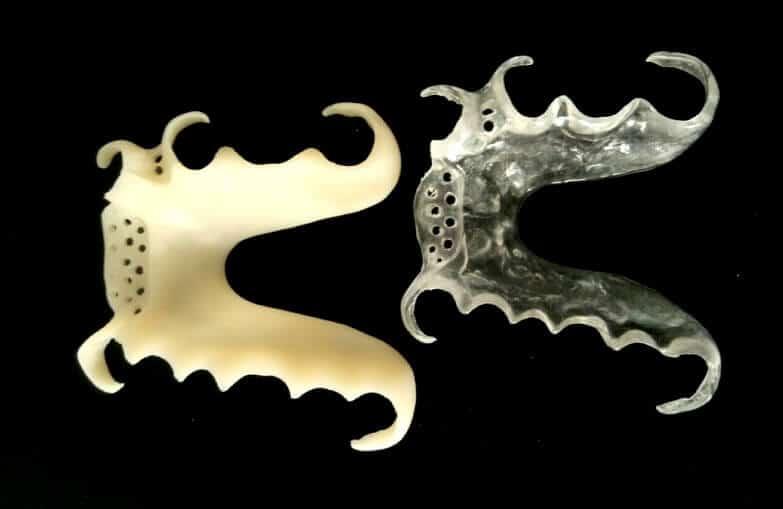 Vertex skelet za djelomičnu protezu