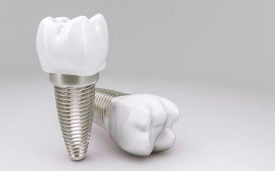 Koliki je životni vijek zubnih implantata?