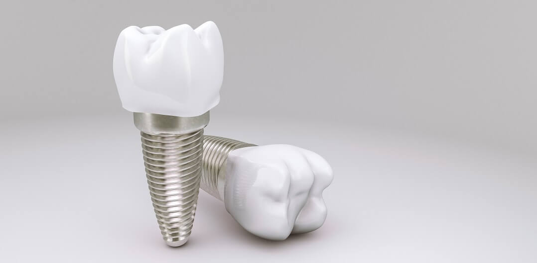 Dva zubna implantata s krunom na sjajnoj površini